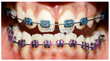 CONVENTIONAL ORTHODONTIC CORRECTION
