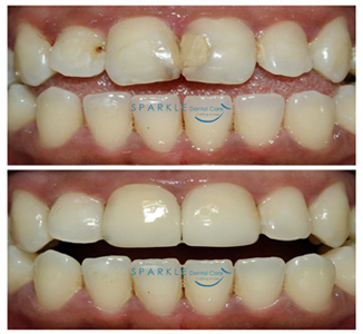 CORRECTION USING PORCELAIN LAMINATE VENEERS